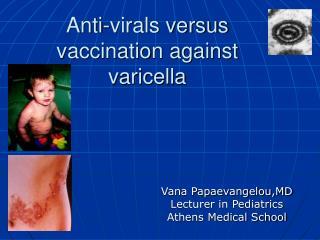 Anti-virals versus vaccination against varicella