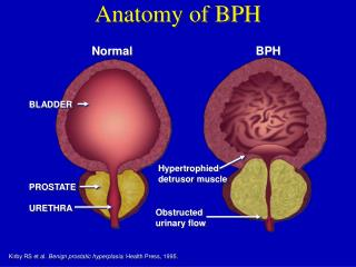 Anatomy of BPH
