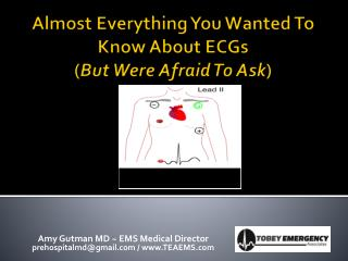 Almost Everything You Wanted To Know About ECGs ( But Were Afraid To Ask )