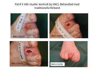 Pat # 5 VAC-studie: kontroll (ej VAC). Behandlad med traditionella förband