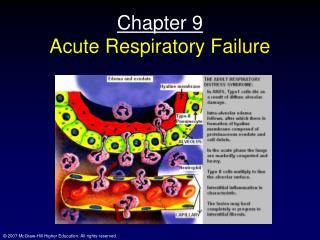 Chapter 9 Acute Respiratory Failure