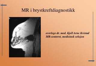 overlege dr. med. Kjell Arne Kvistad MR-senteret, medisinsk seksjon