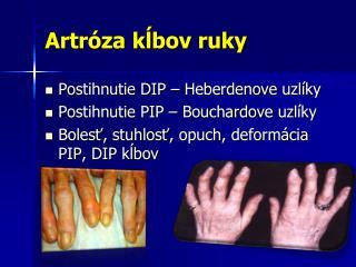 Artróza kĺbov ruky