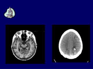 Tecniche di indagine morfologica:  MRI         TC