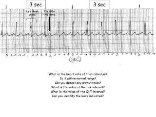 What is the heart rate of this individual? Is it within normal range?
