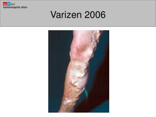 Varizen 2006