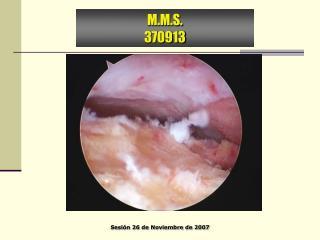 M.M.S. 370913