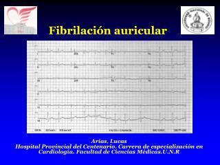 Fibrilaci�n auricular