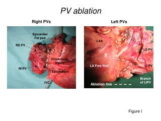 PV ablation