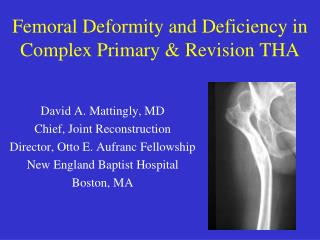 Femoral Deformity and Deficiency in Complex Primary & Revision THA