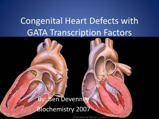 Congenital Heart Defects with GATA Transcription Factors