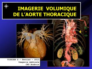 IMAGERIE  VOLUMIQUE DE L'AORTE THORACIQUE
