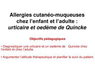 Allergies cutan o-muqueuses chez l enfant et l adulte : urticaire et oed me de Quincke