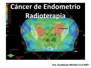 Cáncer de Endometrio Radioterapia