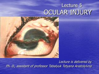 Lecture  5 OCULAR INJURY