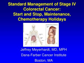 Jeffrey Meyerhardt, MD, MPH Dana-Farber Cancer Institute Boston, MA