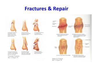 Fractures & Repair