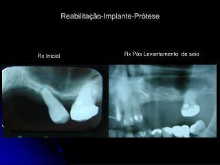 Reabilitação-Implante-Prótese