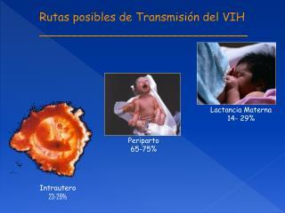 Rutas posibles de Transmisión del VIH _____________________________