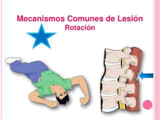 Mecanismos Comunes de Lesión Rotación