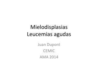 Mielodisplasias Leucemias agudas