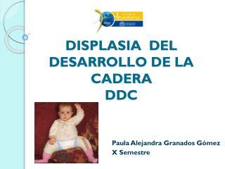 DISPLASIA  DEL DESARROLLO DE LA CADERA DDC
