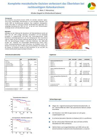 Komplette  mesokolische  Exzision verbessert das Überleben bei rechtsseitigem Kolonkarzinom