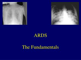 ARDS The Fundamentals