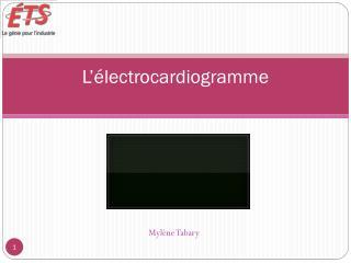 L'électrocardiogramme