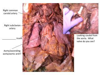 Aorta/ascending aorta/aortic arch?