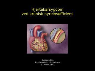 Hjertekarsygdom  ved kronisk nyreinsufficiens