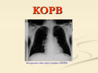 Rentgenska slika pljuč bolnika s KOPB.