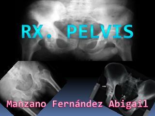 Rx.  Pelvis