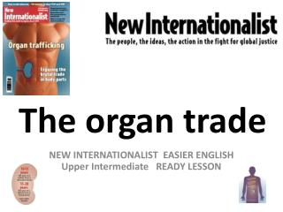 The organ trade