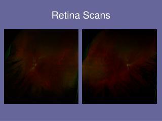 Retina Scans