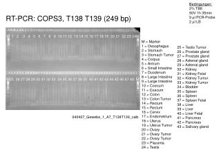 RT-PCR:  COPS3 , T138 T139 (249 bp)