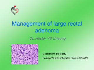 Management of large rectal adenoma
