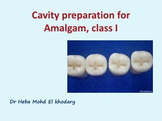 Cavity  preparation  for Amalgam, class I