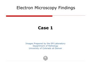 Electron Microscopy Findings