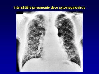 interstiti ë le pneumonie door cytomegalovirus