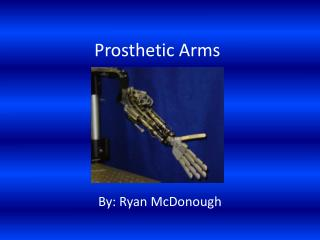Prosthetic Arms