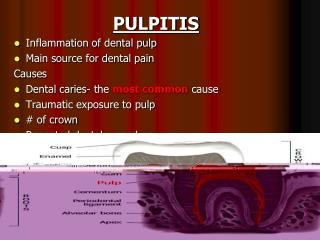 PULPITIS Inflammation of dental pulp Main source for dental pain Causes  Dental caries- the most common cause Traumatic