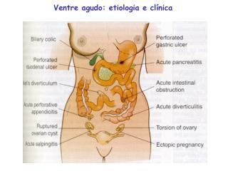 Ventre agudo: etiologia e clínica