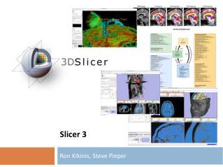 Slicer 3