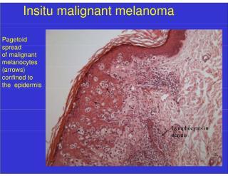 Insitu malignant melanoma