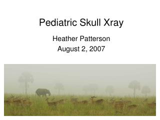 Pediatric Skull Xray