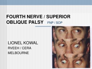 FOURTH NERVE / SUPERIOR OBLIQUE PALSY FNP / SOP