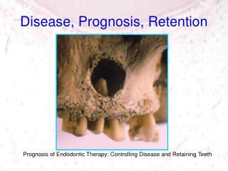 Disease, Prognosis, Retention