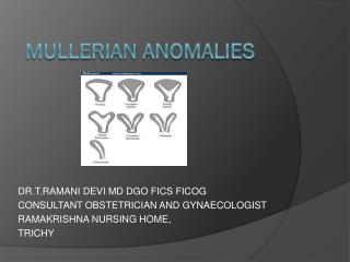 M ullerian anomalies