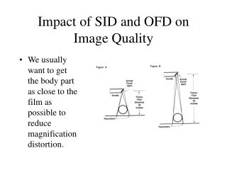Impact of SID and OFD on Image Quality